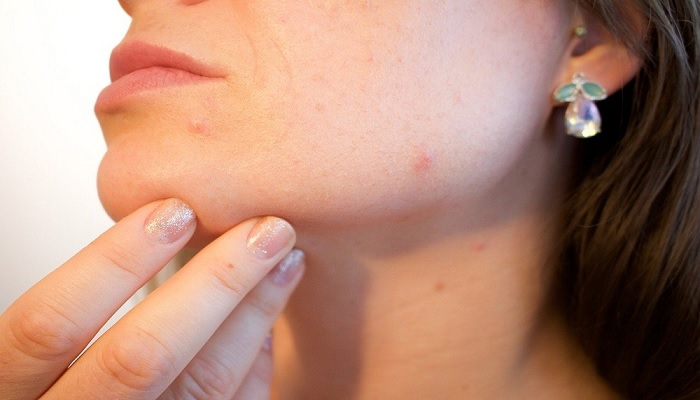 Acne Treatment: Types, Side Effects, and More